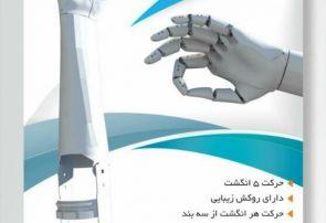 """""""دست الکترونیکی با قابلیت کنترل انگشتان با امواج مغزی"""" توسط مهندسان تبریزی اختراع شد"""