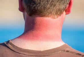 آفتاب سوختگی چگونه درمان میشود؟